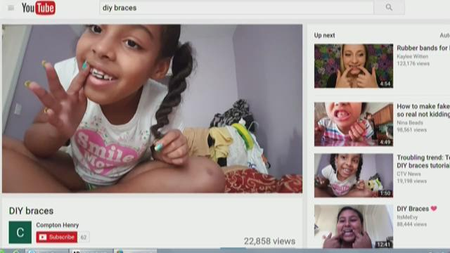 Kens5 the disturbing trend of diy braces is sweeping the nation solutioingenieria Choice Image